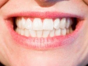 So einfach können Sie Hohlräume zwischen den Zähnen vermeiden