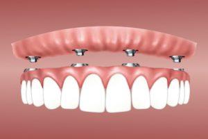 Wie lange halten Zahnimplantate?
