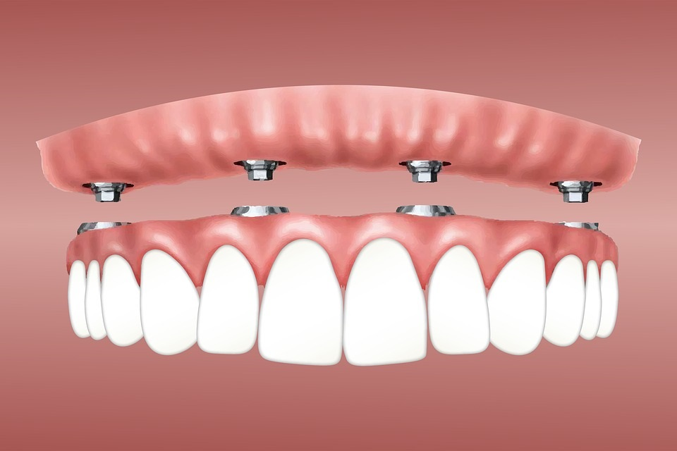 Wie lange halten Zahnimplantate