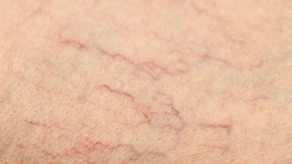 10 Mythen über Krampfadern