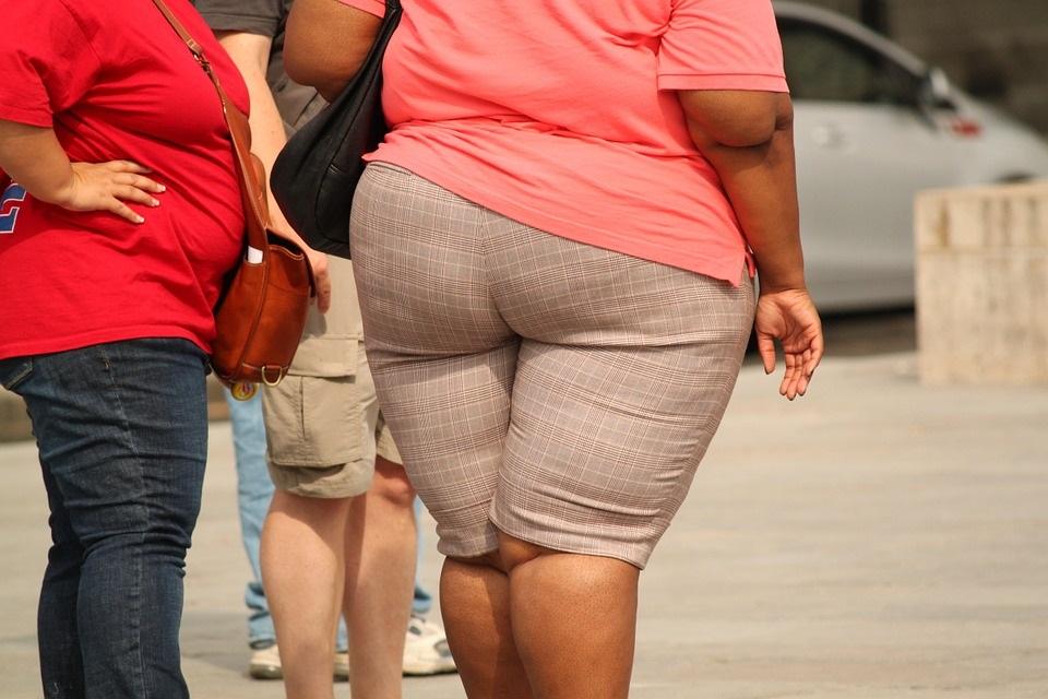 Ist ein Lipödem mit Fettleibigkeit verbunden?