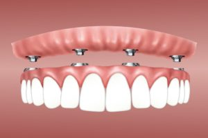 Die vier Arten von Zahnimplantaten