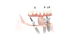 Brauche ich mit All-on-4 Implantaten noch Prothesenklebstoffe?