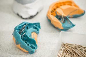 Aus welchen Materialien bestehen Zahnimplantate?
